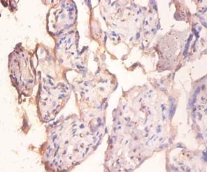 Immunohistochemistry (IHC) PPP1R11.