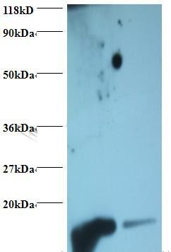 Western Blot (WB) Hemoglobin.
