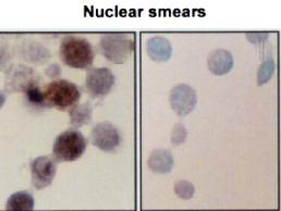 Immunocytochemistry/Immunofluorescence (ICC/IF) HSPA2.