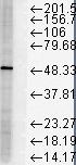 Testing Data #2 FKBP5.