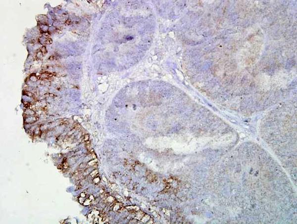 Immunohistochemistry (IHC) NF1P5.