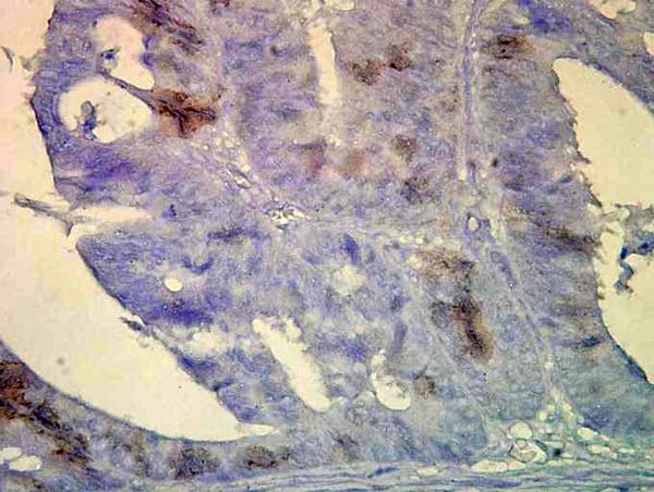 Immunohistochemistry (IHC) HSPA2.
