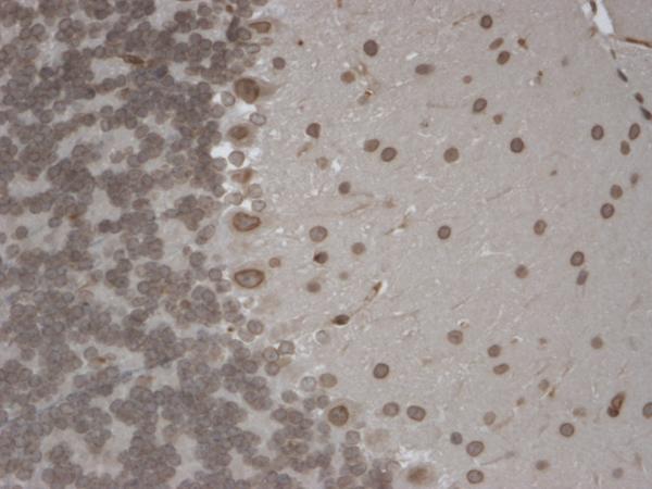 Immunohistochemistry (IHC) Trpm7.