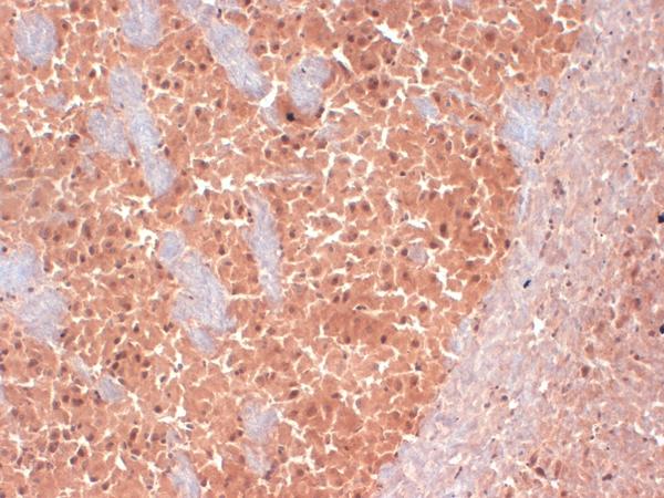 Immunohistochemistry (IHC) KCNQ2.