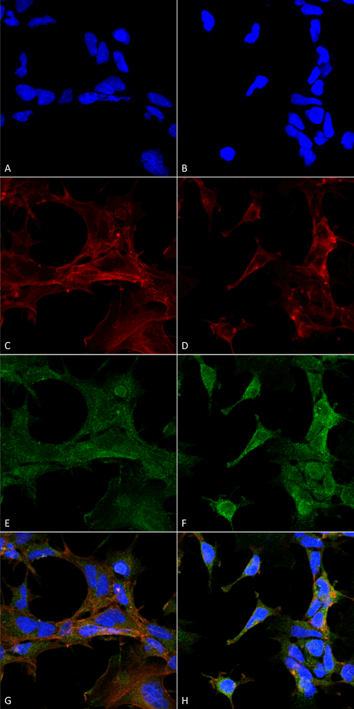 Immunocytochemistry/Immunofluorescence (ICC/IF) 4-HHE.