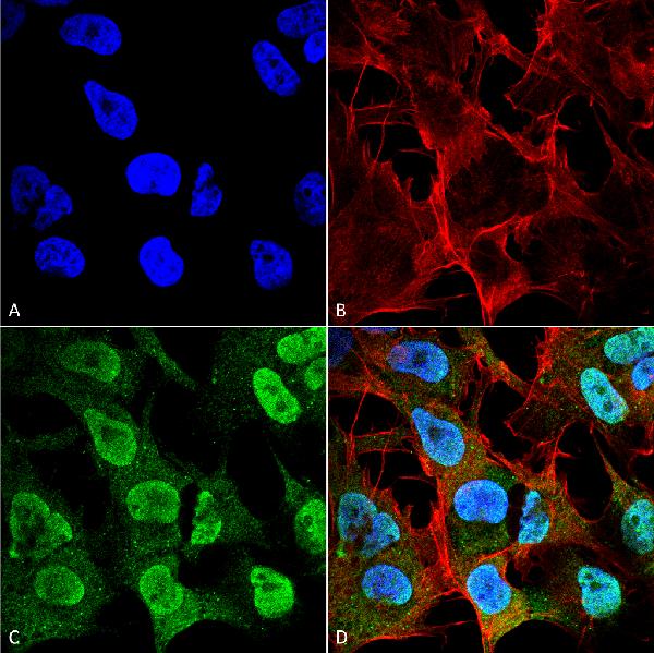 Immunocytochemistry/Immunofluorescence (ICC/IF)