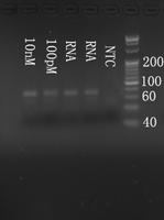 Electrophoresis hsa-mir-92b RT-PCR.