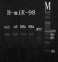 Electrophoresis hsa-mir-98 RT-PCR.