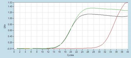 Amplication #2 hsa-mir-320b RT-PCR.