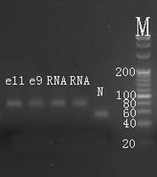 Electrophoresis hsa-mir-320b RT-PCR.