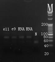 Electrophoresis hsa-mir-7 Real-time RT-PCR.