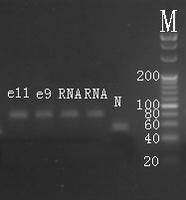Electrophoresis hsa-mir-146b-5p Real-Time RT-PCR.