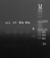 Electrophoresis hsa-mir-10b Real-Time RT-PCR.