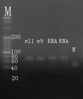 Electrophoresis hsa-mir-299 RT-PCR.