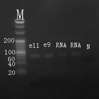 Electrophoresis hsa-mir-219 RT-PCR.