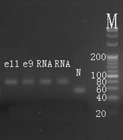 Electrophoresis hsa-mir-320b Real-time RT-PCR.