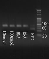 Electrophoresis hsa-mir-205 Real-time RT-PCR.