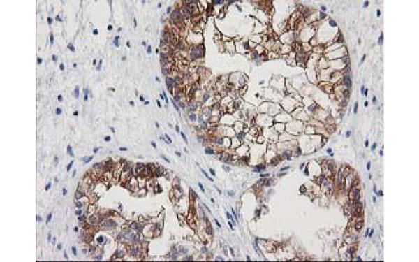 Immunohistochemistry (IHC) NNMT.