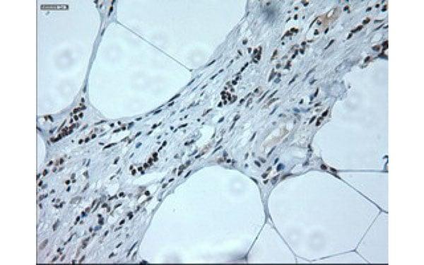 Immunohistochemistry (IHC) NEUROG1.