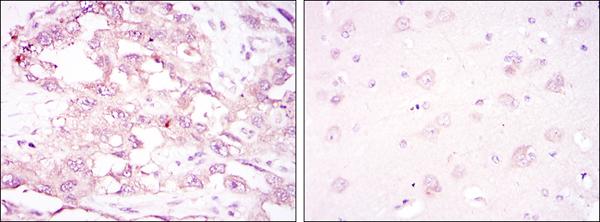 Immunohistochemistry (IHC) PRKAA1.