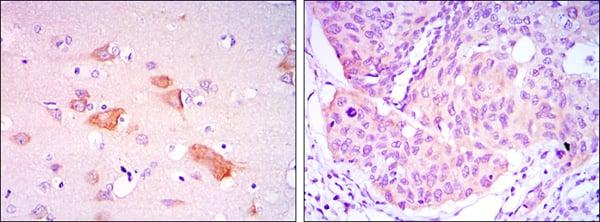 Immunohistochemistry (IHC) SMAD5.