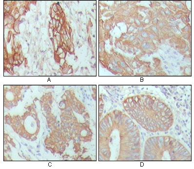 Immunohistochemistry (IHC) CYK18.