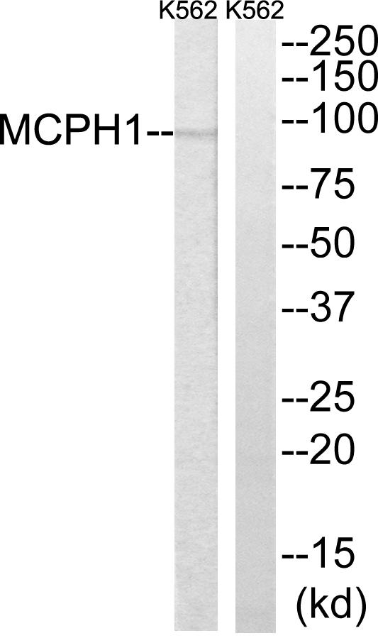 Immunohistochemistry (IHC) MCPH1.