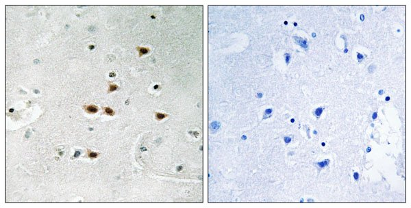 anti-ITCH antibody Testing Data image