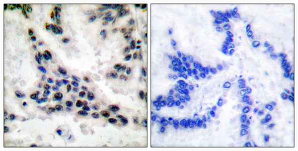 Immunohistochemistry (IHC) HDAC1.