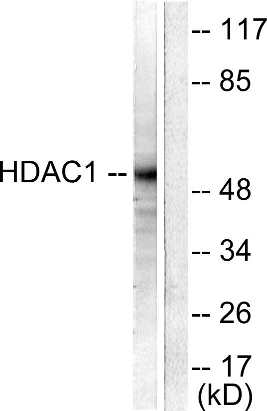 Testing Data #2 HDAC1.