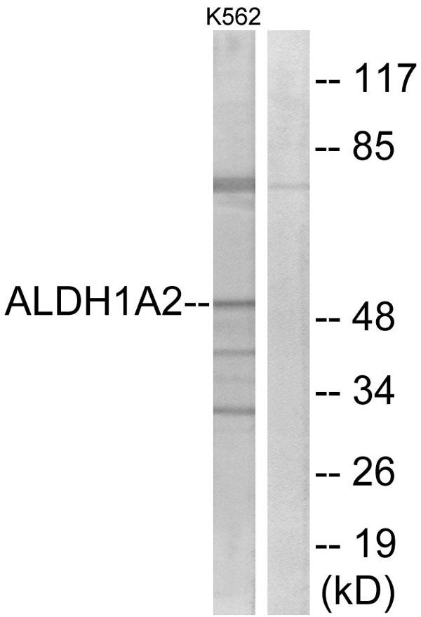 Western Blot (WB) ALDH1A2.