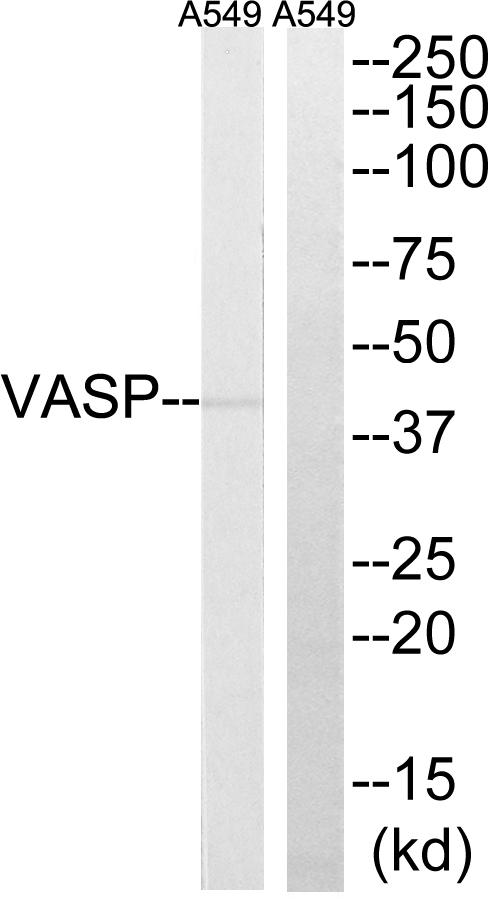 Immunohistochemistry (IHC) VASP.