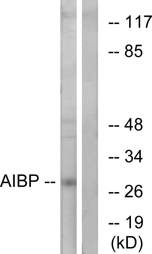 Testing Data AIBP.