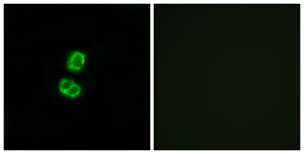 Immunofluorescence (IF) FGF22.