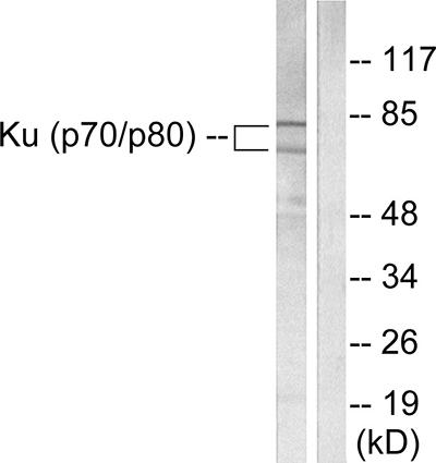 Testing Data #2 Ku80.