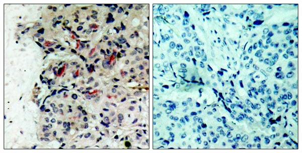 Immunohistochemistry (IHC) JAK1.
