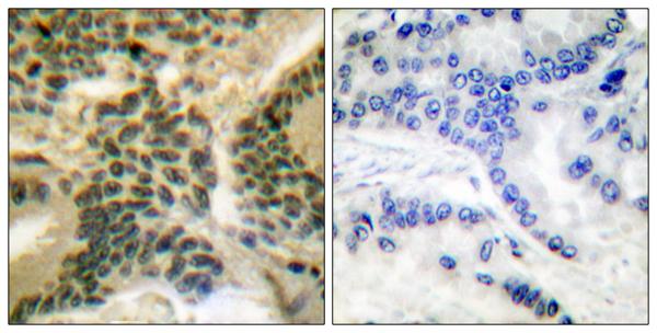 Immunohistochemistry (IHC) PKC zeta.