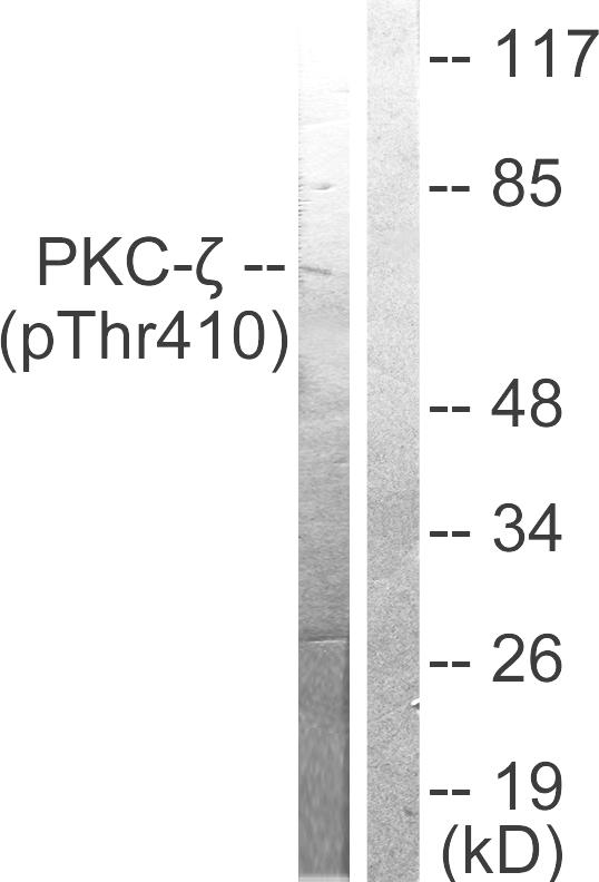 Testing Data #2 PKC.