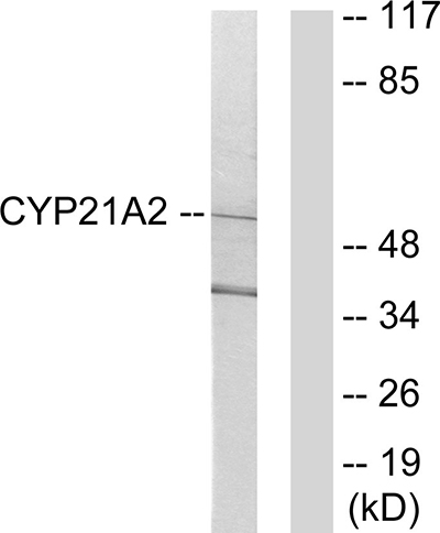 anti-CYP21A2 antibody Testing Data image