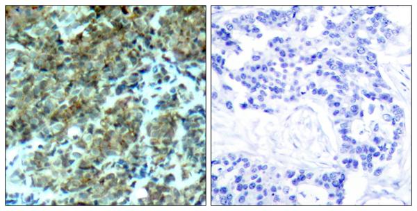 Immunohistochemistry (IHC) CTTN.