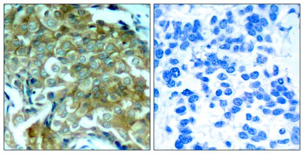 Immunohistochemistry (IHC) EGFR.