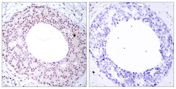 Immunofluorescence (IF) RELA.