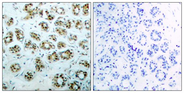 Immunohistochemistry (IHC) RELA.