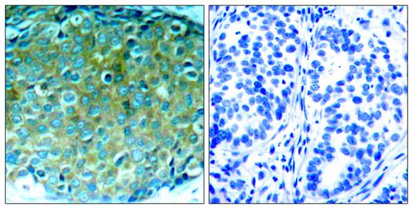 Immunohistochemistry (IHC) PAK1.