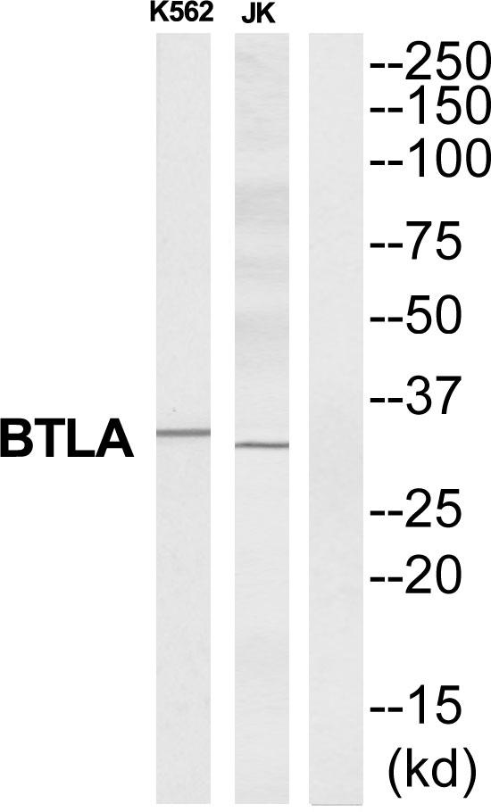 Testing Data BTLA.