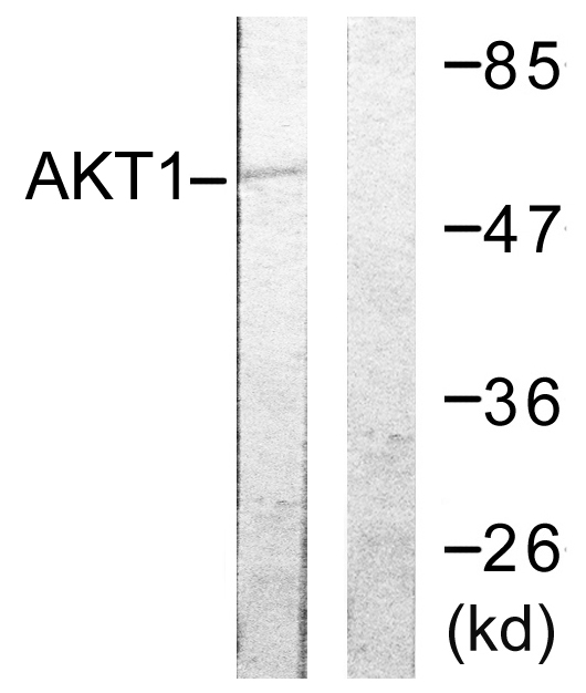 Immunohistochemistry (IHC) Akt.