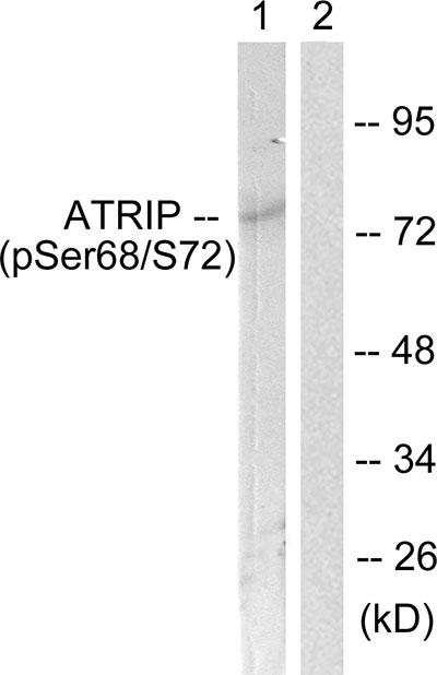 Testing Data ATRIP.