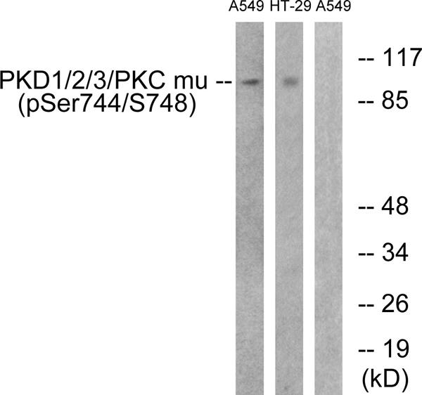 Immunohistochemistry (IHC) PKD1/2/3/PKC.