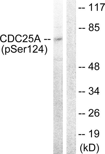 Testing Data CDC25A.