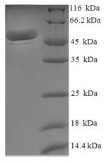 SDS-PAGE MDH2.